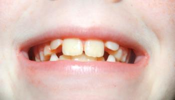 Rostou nám zoubky – rady jak o ně správně pečovat